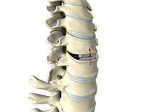 Lumbar Artificial Disc Replacement