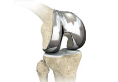 Custom/Patient-Specific Hip Replacement