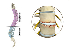 Fracture of the Thoracic and Lumbar Spine