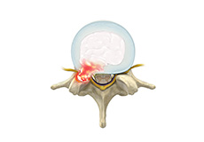 Lumbar Disc Herniation