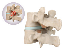 Lumbar Facetectomy and Foraminotomy