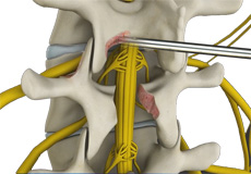 Nerve and Spinal Decompression Surgery