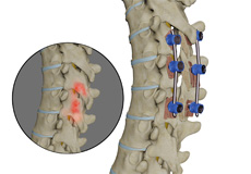 Spinal Infection