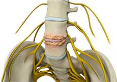 Spine Bone Spurs